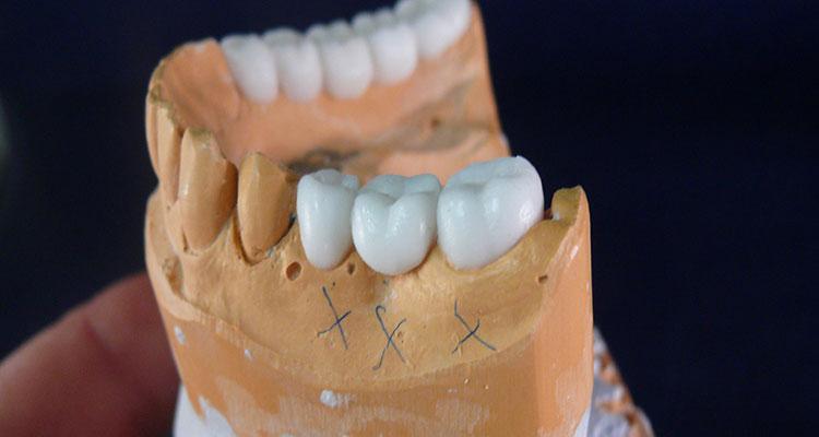 voskovoe-modelirovanie-zubov