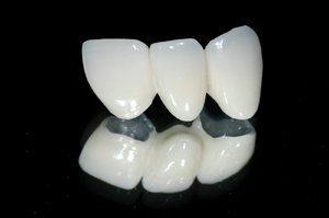 metallokeramika-protezirovanie