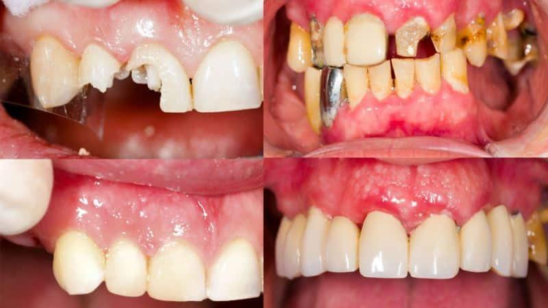 Реставрация зубов: что это такое, виды, плюсы и минусы каждого, сколько стоит