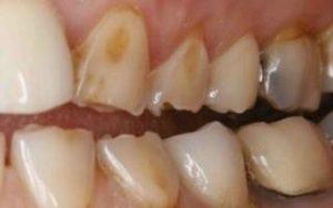 Художественная реставрация зубов: как делают реставрацию, сколько стоит