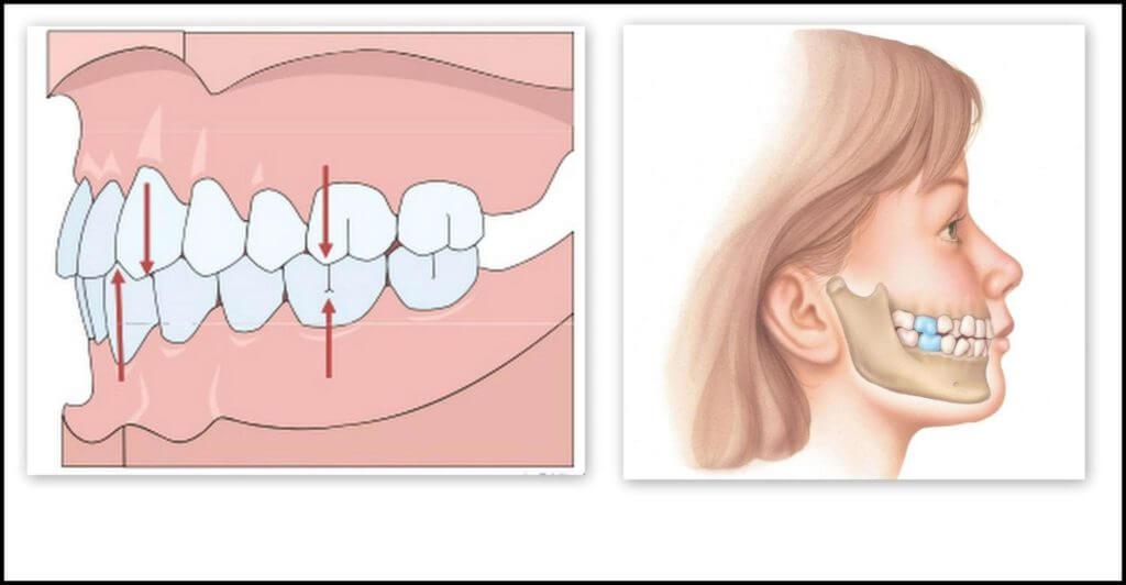 okklyuziya-ehto-v-stomatologii