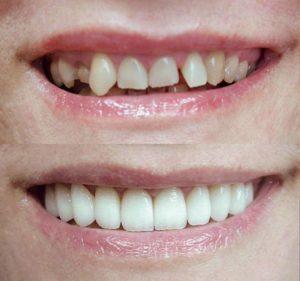 ehsteticheskaya-restavraciya-perednih-zubov