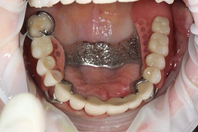 nesemnoe-protezirovanie-zubov-ceny