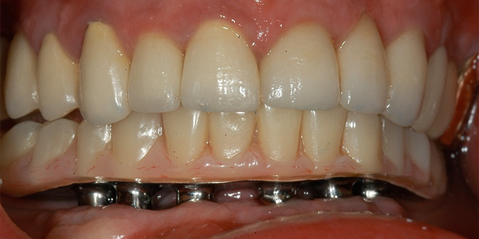nesemnoe-protezirovanie-zubov