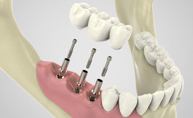 Протезирование на имплантах: как проходит процедура, важные моменты