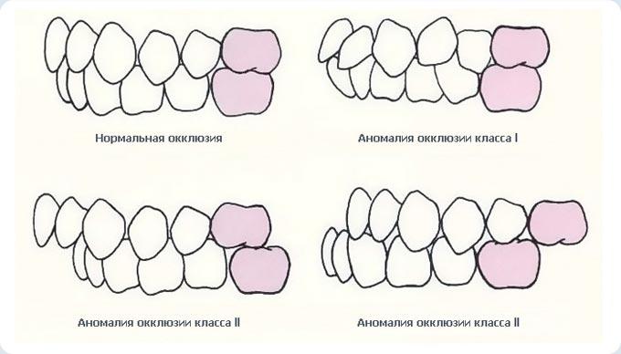 vidy-anomalnoj-okklyuzii