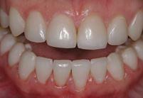 Художественная реставрация передних зубов: как проходит процедура, стоимость