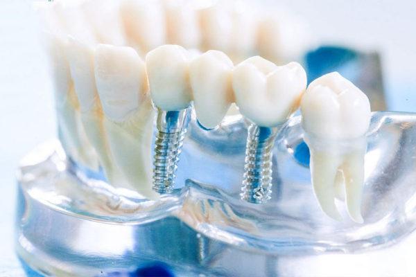 protezirovanie-na-implantah