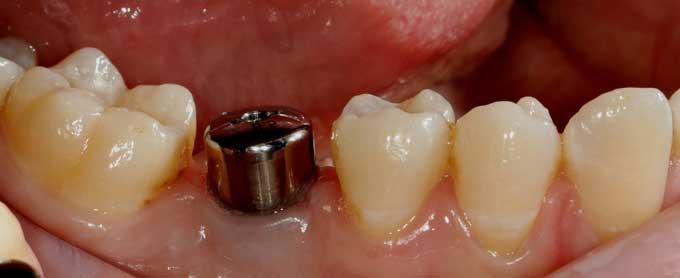 protezirovanie-na-implantatah