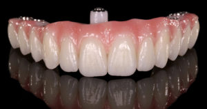 protezirovanie-pri-polnom-otsutstvii-zubov