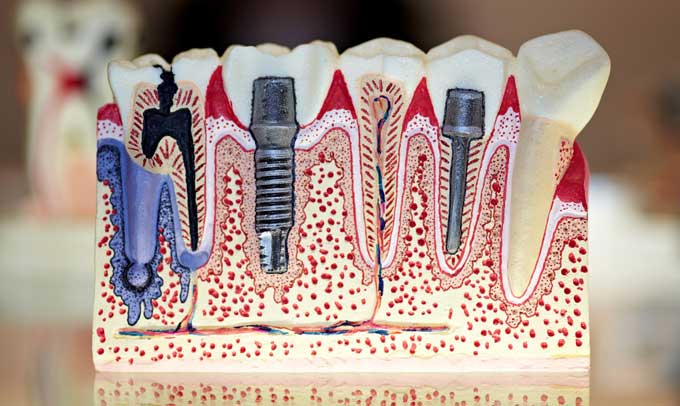 protezirovanie-zubov-na-implantah