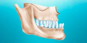 protruziya-zubov