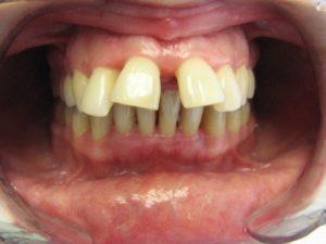 retruziya-zubov