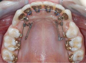 Протрузия зубов: определение, причины появления и как лечить