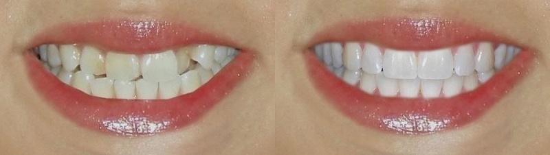 restavraciya-zubov-do-i-posle