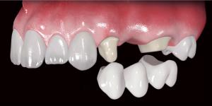Способы протезирования зубов: описание всех способов, плюсы и минусы каждого