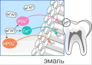 remineralizaciya-zubov