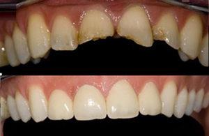 Эстетическая реставрация зубов: как проходит процедура, ее виды и цена