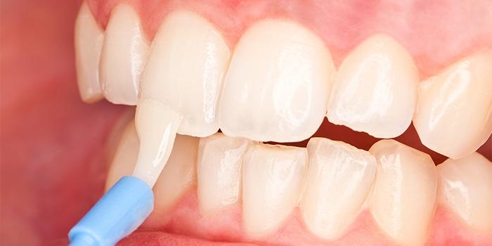 restavraciya-zubov-cena