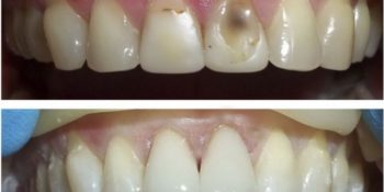 Эстетическая реставрация передних зубов: описание и показания к процедуре, стоимость