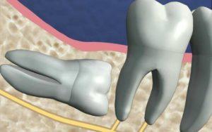 Ретенция зуба: что это такое, причины, как лечить, профилактика