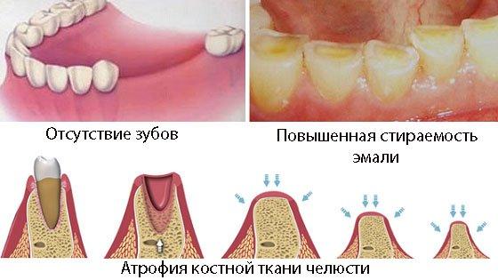 byugelnyj-protez-na-perednie-verhnie-zuby