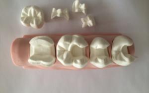 vkladka-na-zub