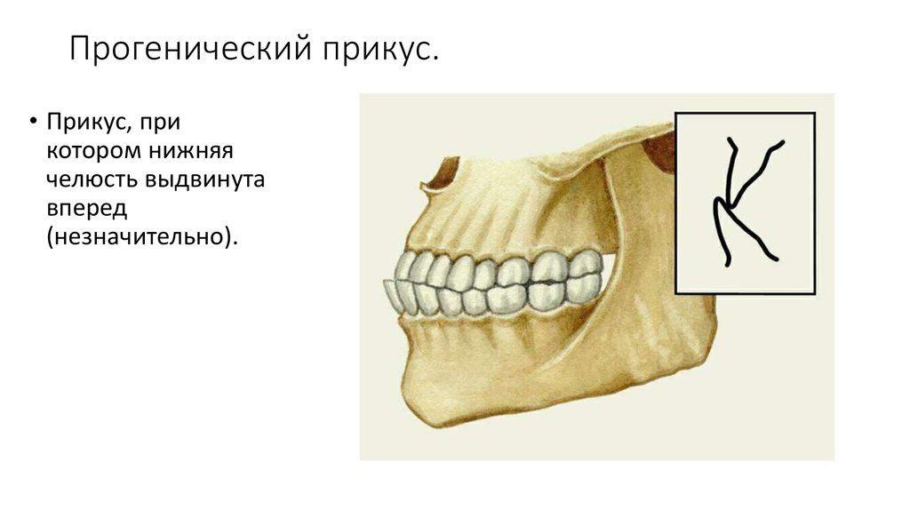 progenicheskij-prikus