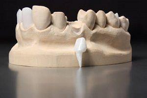 vkladka-v-zub-pod-koronku