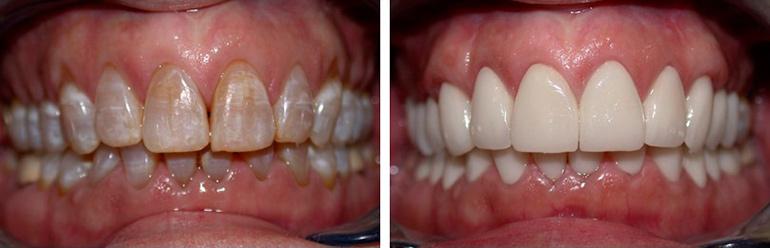vosstanovlenie-zubov