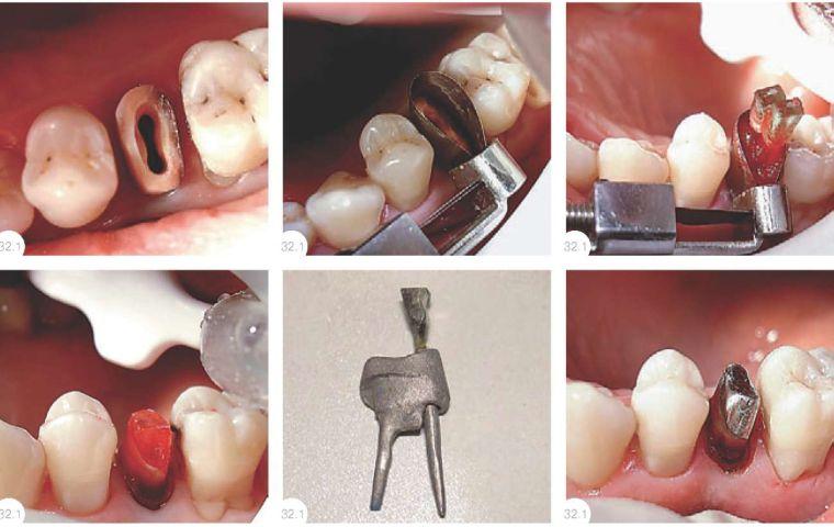 Вкладка на зуб: что из себя представляет, особенности установки, плюсы и минусы
