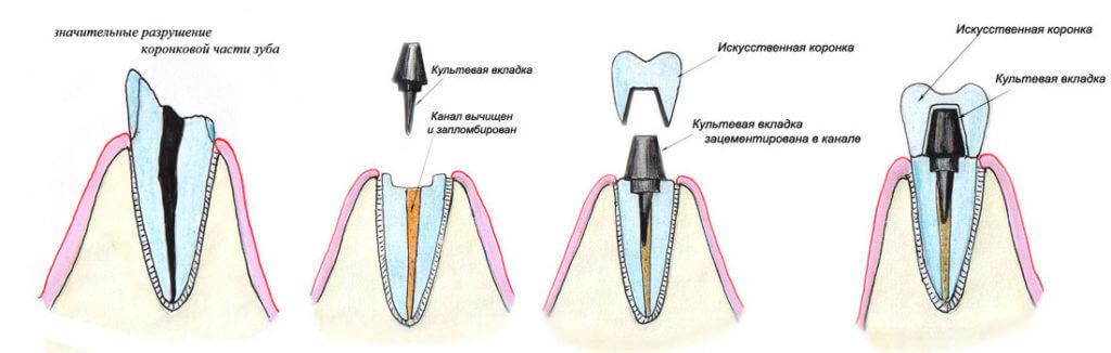 Вкладка на зуб под коронку: как устанавливают, виды и стоимость вкладок