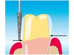 Препарирование под металлокерамическую коронку: все что нужно знать о процедуре