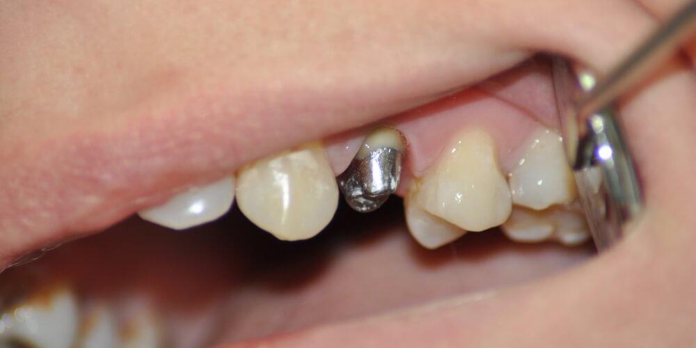 vkladka-na-zub-pod-koronku