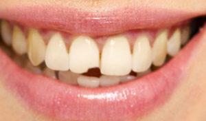 Восстановление передних зубов: основные способы и стоимость