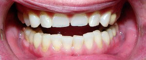 stertye-zuby