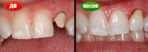 restavraciya-zubov-do-i-posle-foto