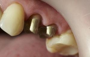 vkladka-v-zub-pod-koronku-foto