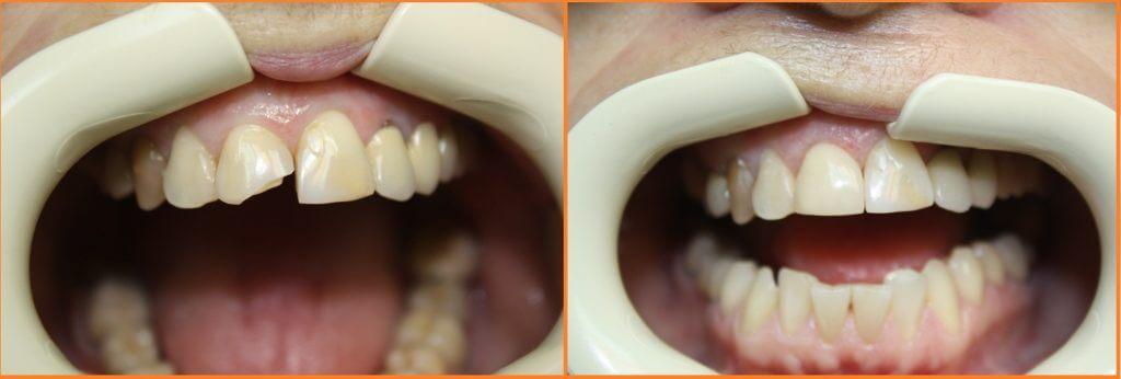 vosstanovlenie-zuba