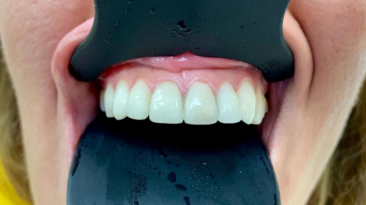 vinir-e-max-s-naneseniem-keramiki-pacient